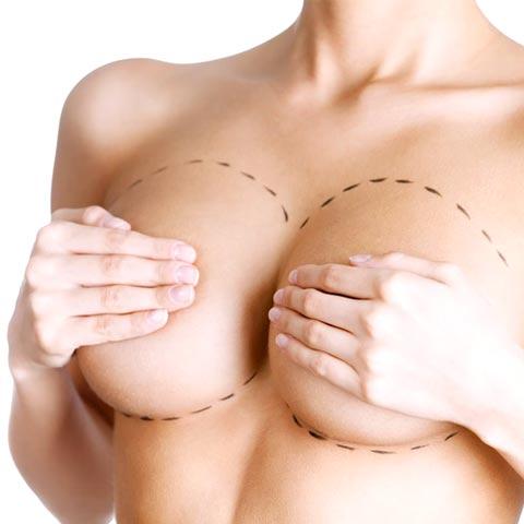 Увеличение груди – Акция