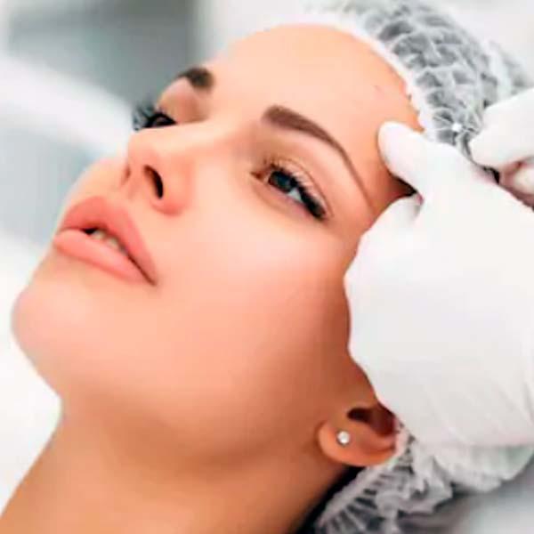 Мезонити 3D для подтяжки лица и тела