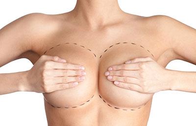 Пластическая операция груди по изменению формы ареолы