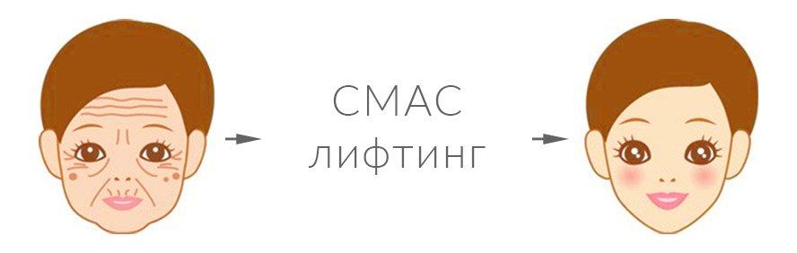 SMAS-пластика (спейслифтинг)