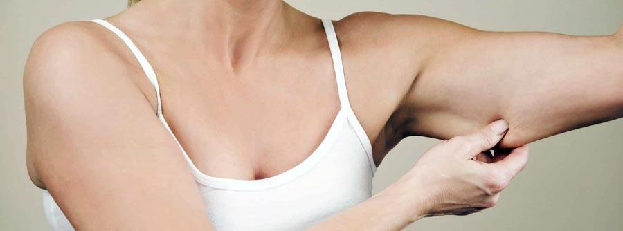 Подтяжка кожи тела (бодилифтинг)