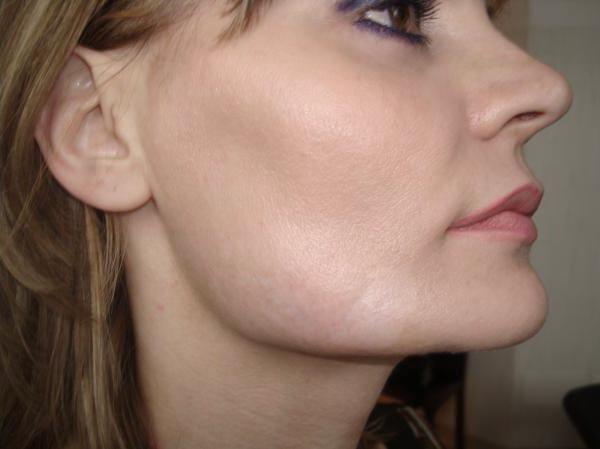 After-Удаление шрамов (рубцов) на лице фото до и после