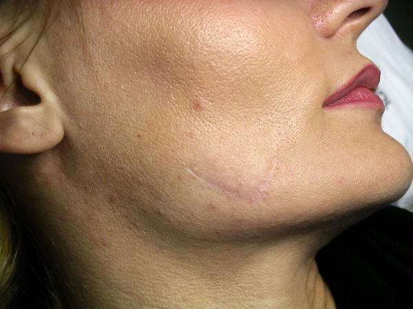 Before-Удаление шрамов (рубцов) на лице фото до и после