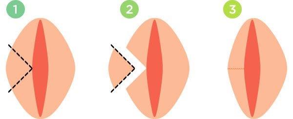 V-образная резекция половых губ