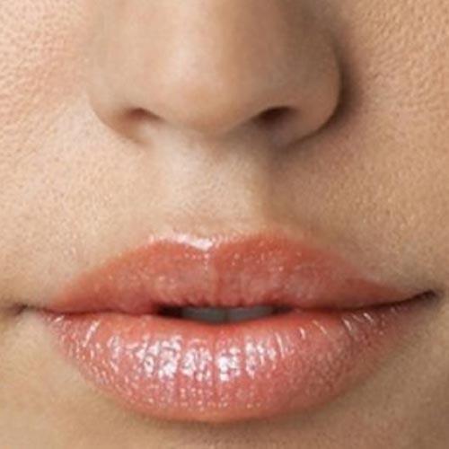 After-Пластика губ (Хейлопластика)