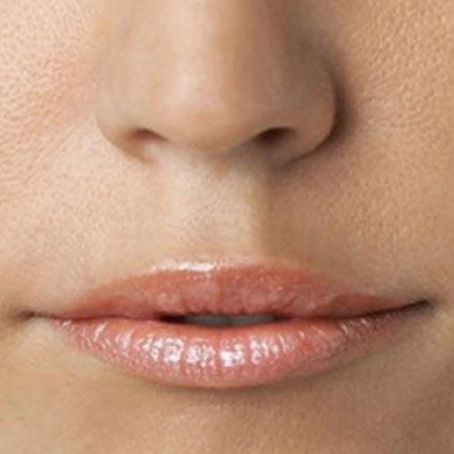 Before-Пластика губ (Хейлопластика)
