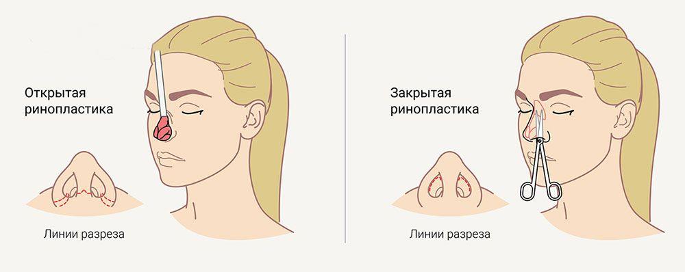 закрытая и открытая ринопластика носа