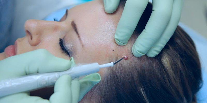 Удаление новообразований на лице