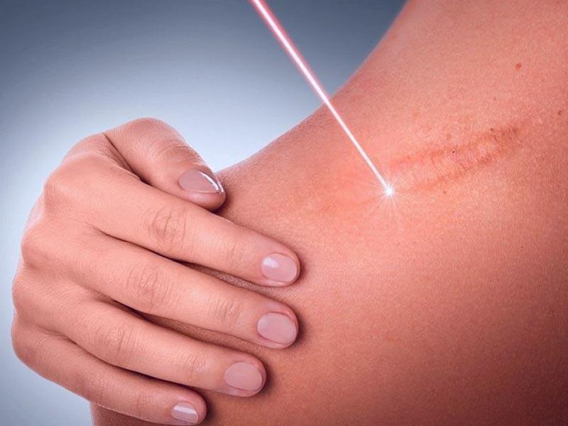 Методы удаления шрамов, рубцов, растяжек (стрий)