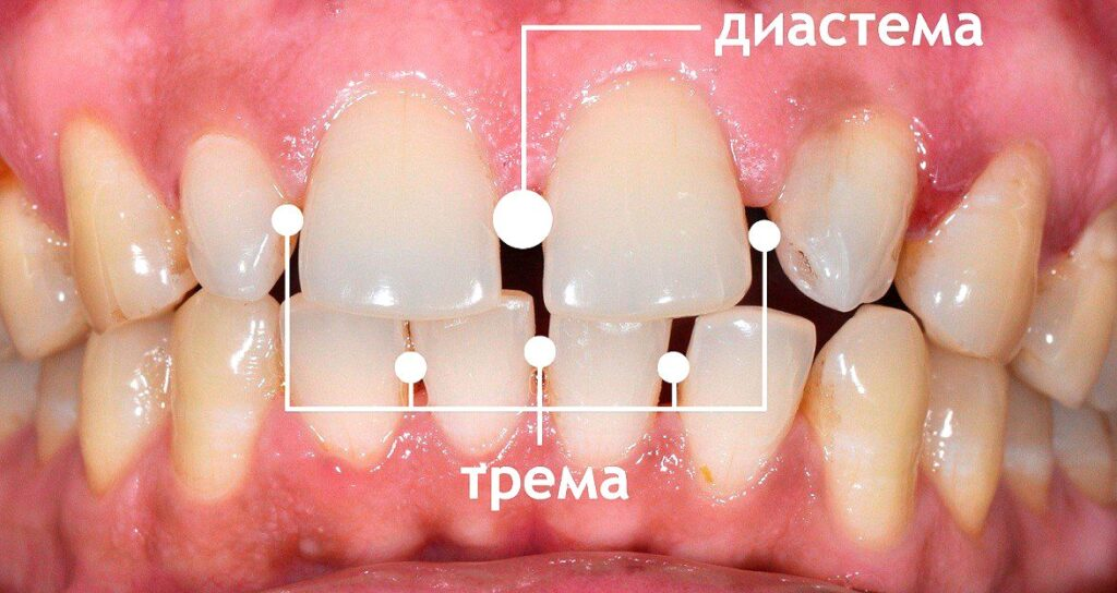 Диастема и трема зубов