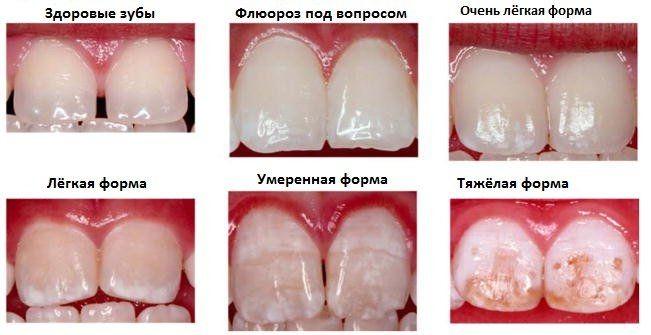Формы флюороза зубов лечение