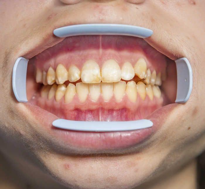 Гипоплазия эмали зубов Лечение
