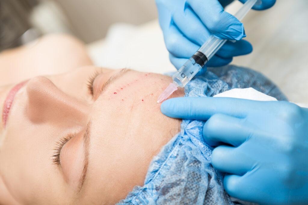 мезотерапия и плазмолифтинг