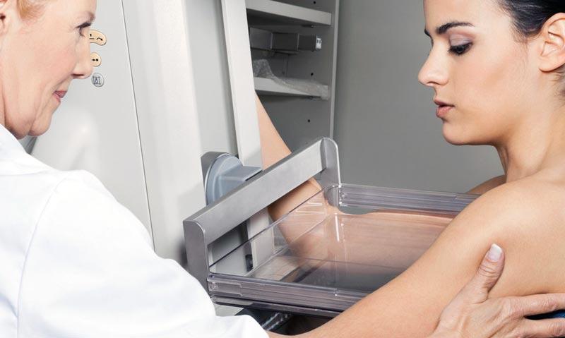 Маммография (Рентгенография молочных желез)