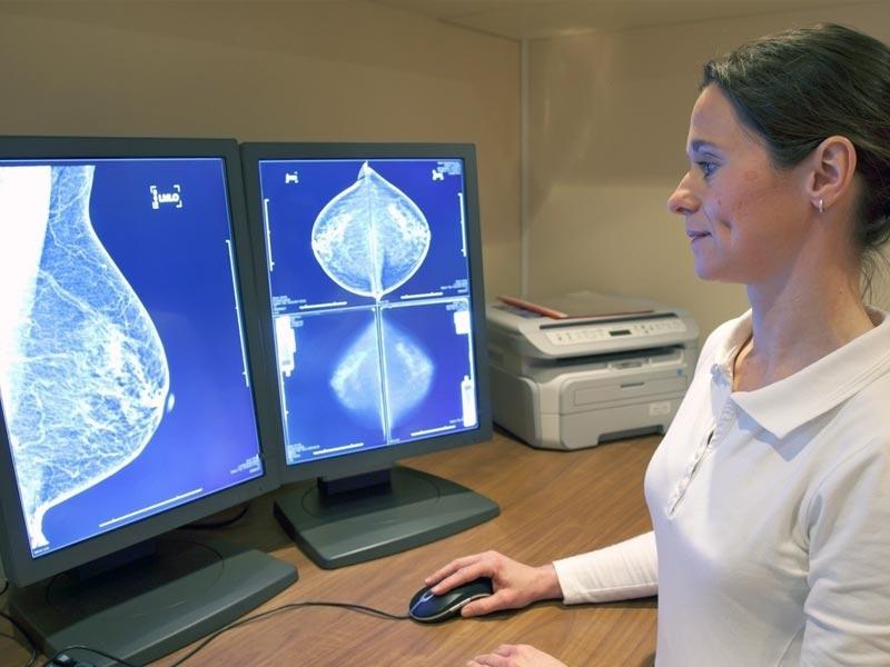 Маммография в Петербурге — где сделать и сколько стоит