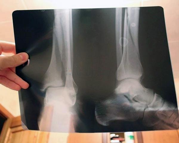 сделать рентген в СПб