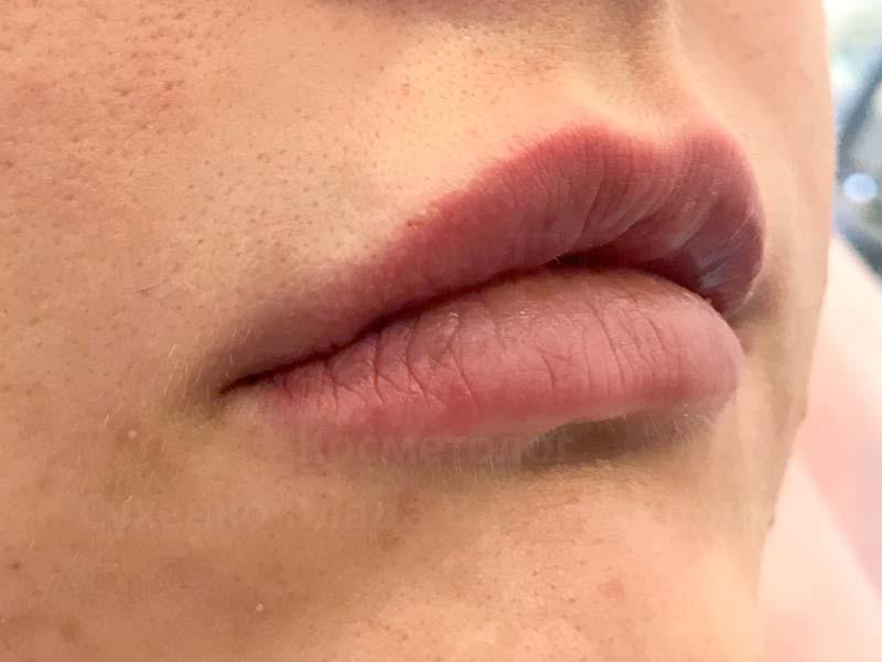 After-Контурная пластика губ – хейлопластика без операции фото до и после