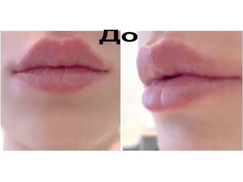 Before-Контурная пластика губ – хейлопластика без операции фото до и после