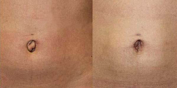 умбиликопластика фото до и после