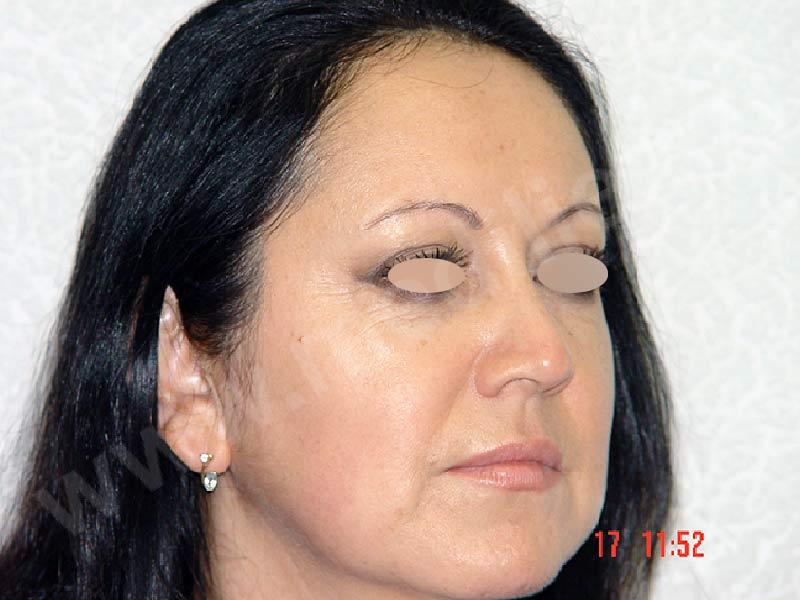 After-Блефаропластика фотографии до и после