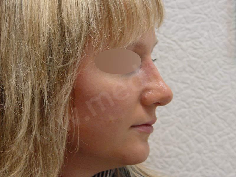 After-Ринопластика фотографии до и после