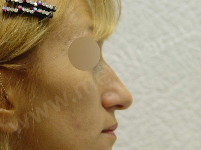 Before-Ринопластика фотографии до и после