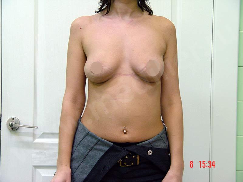 After-Периареолярная мастопексия фотографии до и после
