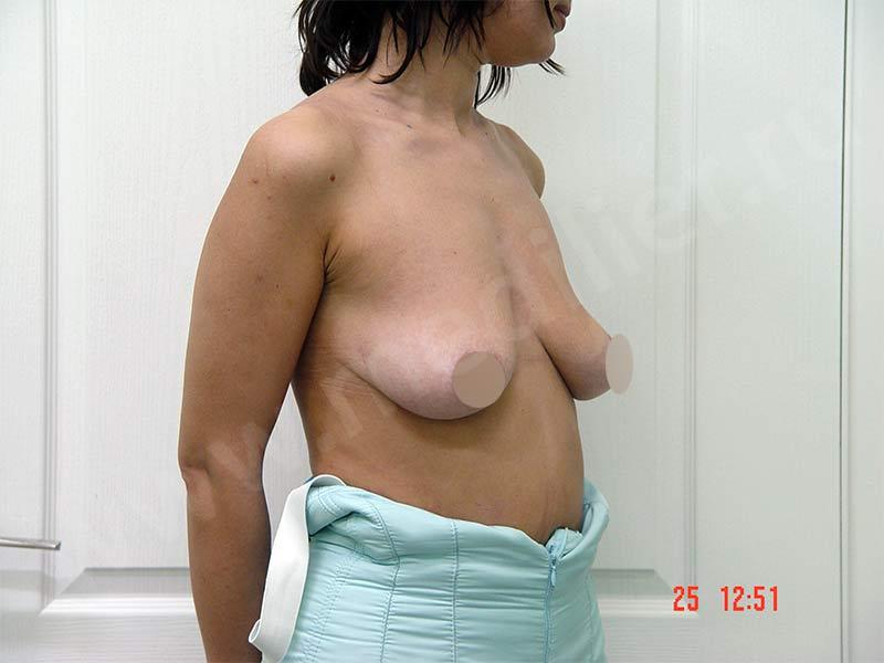 Before-Периареолярная мастопексия фотографии до и после