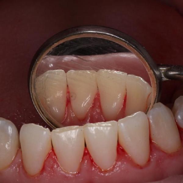 Профессиональная чистка зубов AirFlow с полировкой в клинике Медильер Санкт-Петербург