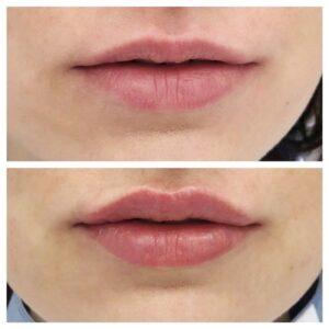 LipsLush